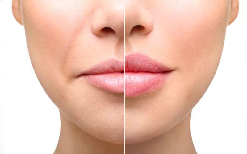 Аугментация губ