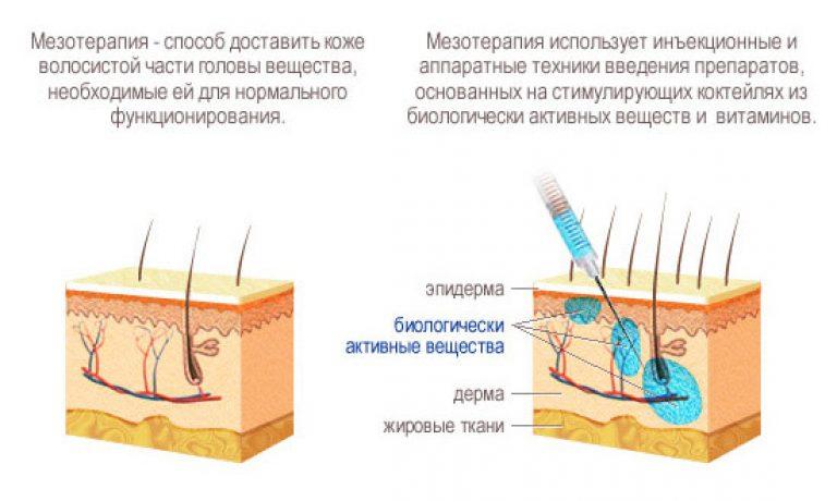 мезотерапия волос южно-сахалинск